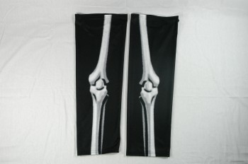 Sublimationsstutzen Röntgen